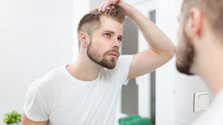 Haarausfall betrifft viele Männer und kann verschiedene Ursachen haben